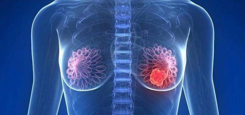 UCM Determinar Agresividad tumor de mama y Tratamiento